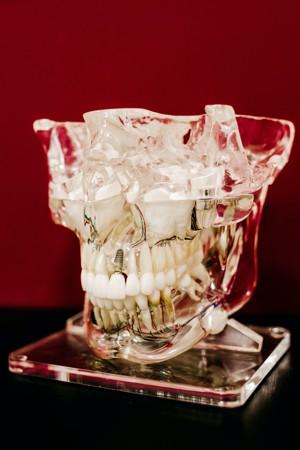 玻璃碗里的牙齿
