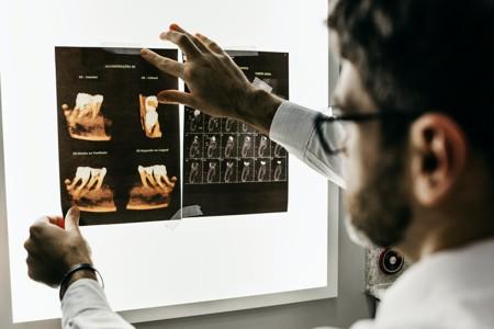 两张牙齿X光片
